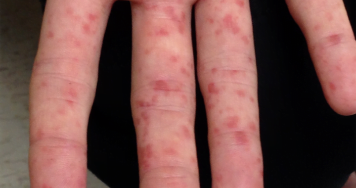 Hand Foot and Mouth Disease in Adults
